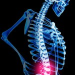 Acupuncture for Treating Back Pain